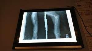 3 cu picioarele fracturate Cu picioarele fracturate 3